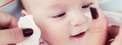 Quitar legañas al bebé